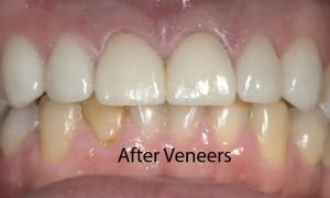 anterior-veneers-after-fixed-300x180.jpg