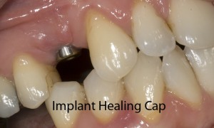 implant-abefore-fixed-300x180.jpg#asset: