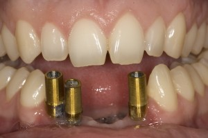 implant-bridge-before-fixed1-300x200.jpg