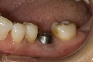 implant-healing-abutment-fixed1-300x200.